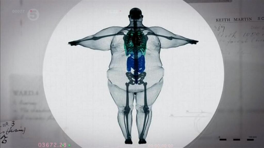 【衝撃】体重180キロの男性を透かしてみた結果がヤバい