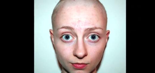 病気と闘いながら生きる女性の14歳から21歳までの記録
